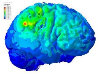 Brainwebinar