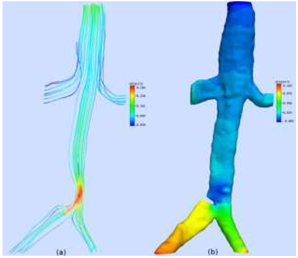 Cfd Simulation Openfoam